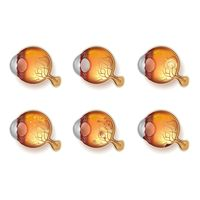 A set of eye anatomies with different conditions