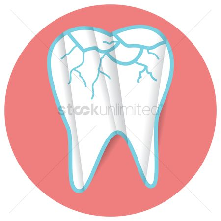 Dentist : Cracked tooth