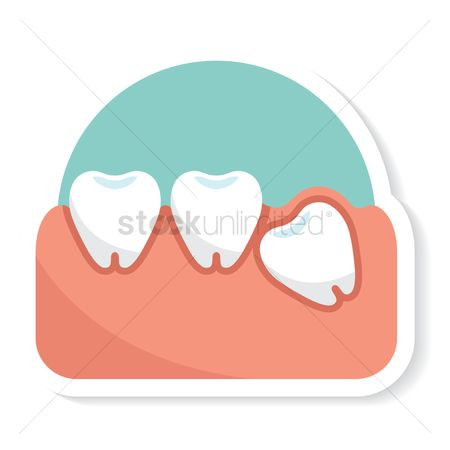 Dentist : Impacted tooth