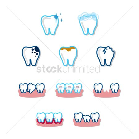 Tooth with braces : Set of tooths