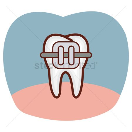Tooth with braces : Tooth with brace