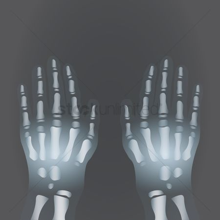 Xray : X-ray of human hands
